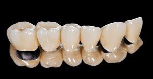 dental bridge with black background