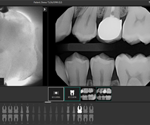 Carivu cavity detection system
