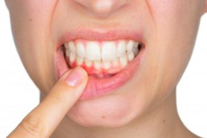 woman pointing to inflamed gums