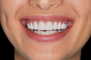 a woman with healthy gums