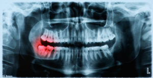 x-ray image of impacted wisdom tooth